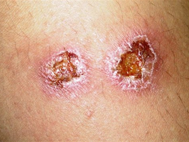 Treatment of Leishmaniasis